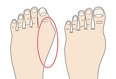外反母趾の施術法  宇治大久保 宇治東洋鍼灸整骨院